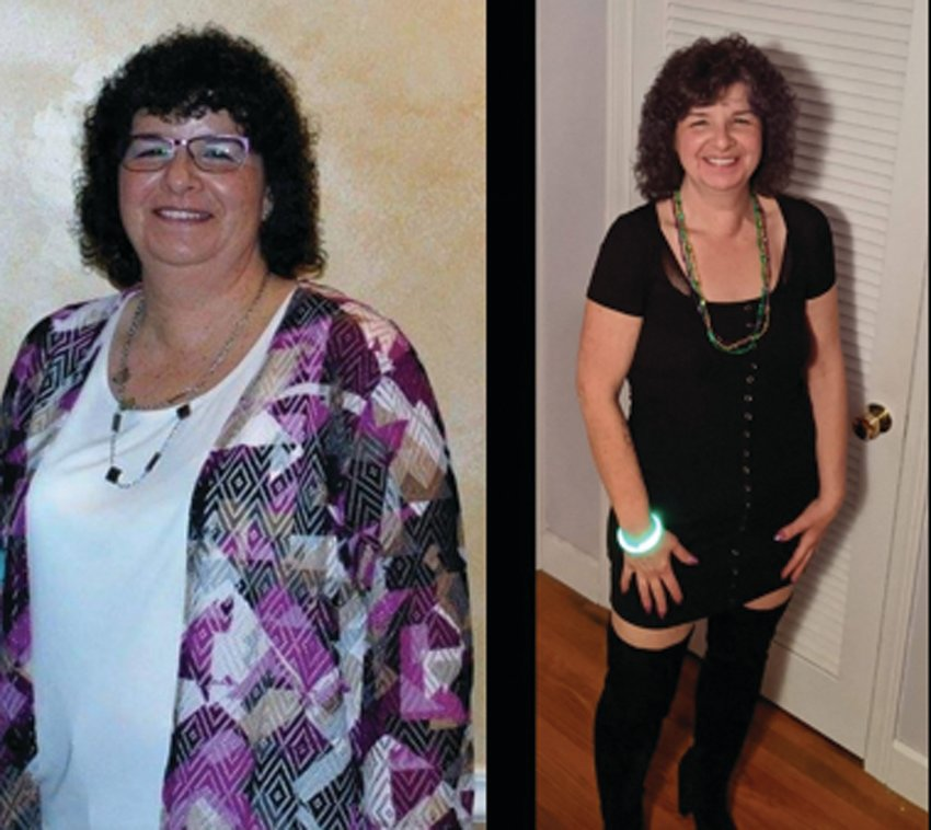 Amy Bernard, seen in these before and after pictures, is the 2019 Queen of Oakland Beach Chapter 44 of Taking Off Pounds Sensibly, or TOPS.