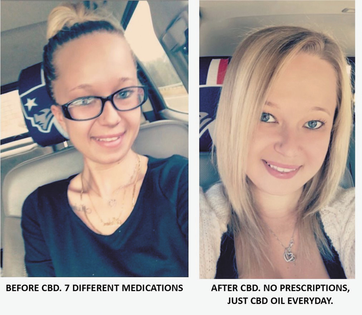 Meet Eva Lanoue, seen here is a shocking before & after photo.  The left photo is of Eva after trying seven different medications.  The right is one taken after she discovered CBD-infused products.  The store is now selling their life-changing products online and over the phone.