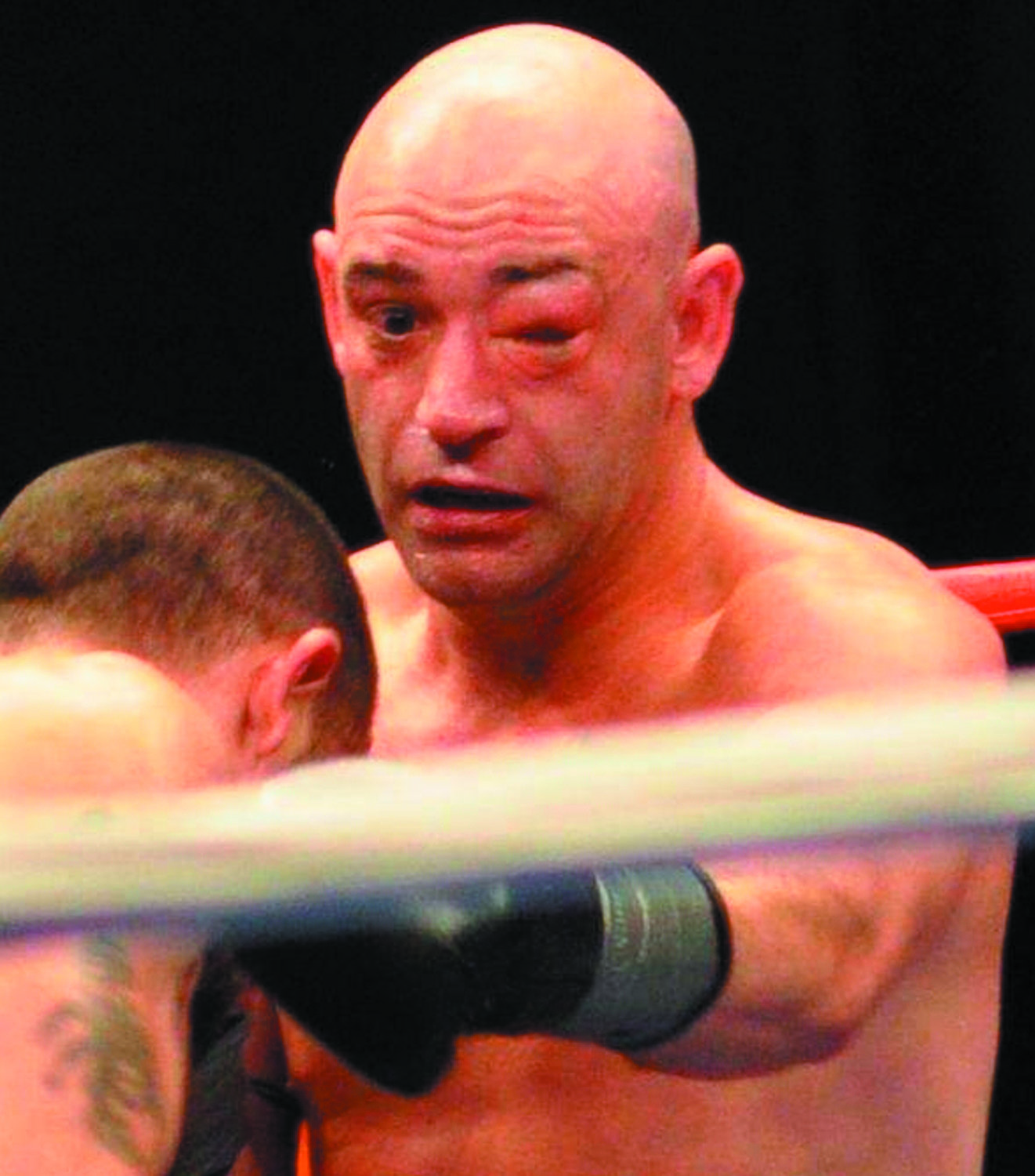 BATTLE SCARS: Pictured is Benny Costantino during a